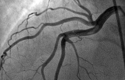 Результат коронарографии сосудов сердца.