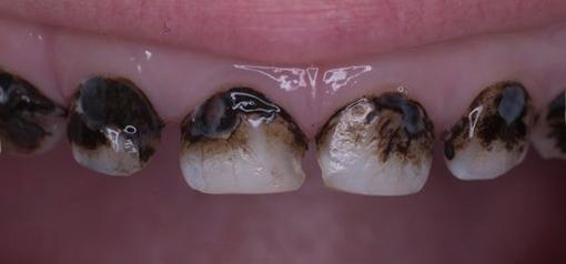 Зубы после проведения серебрения.