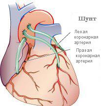 Аортокорональное шунтирование сердца.