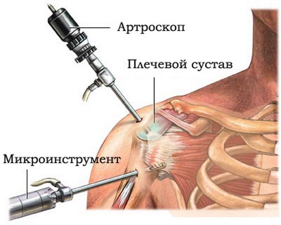 Артроскопия плечевого сустава цена воронеж операция протезирования тазобедренного сустава в боровлянах