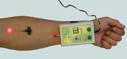 Процедура ультрофиолетового облучения крови