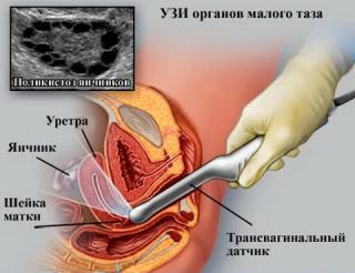 Подготовка к трансвагинального узи