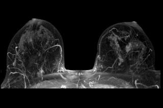 МРТ молочных желез.