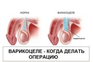 Двустороннее варикоцеле спермограмма хорошая