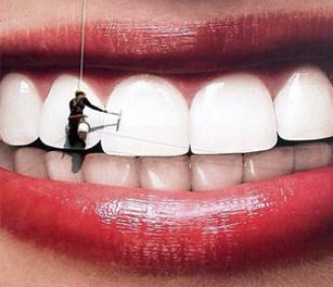 Полировка зубов.