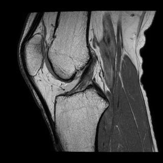 Мрт коленного сустава екатеринбург цены боли в суставах первый канал
