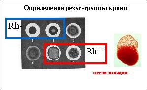 Подготовка к анализу крови на группу и резус фактор Справка от педиатра Улица Милашенкова