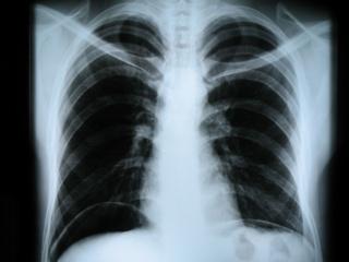 Рентгенография органов грудной клетки.