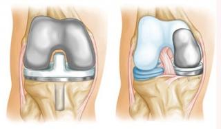 Протез коленного сустава цена уфа травма сустава мизинца руки