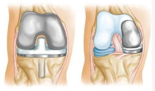 В казани эндопротезирование коленного сустава рефират иннервация височно-нижнечелюстного сустава