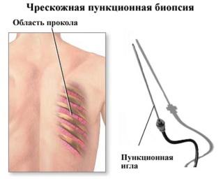 Чрескожная пункционная биопсия.