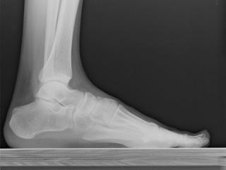 рентген пятки фото