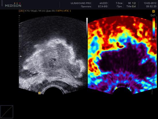 Эффективность эластографии при опухолях простаты