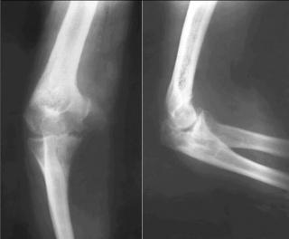 Рентгенография локтевого сустава.