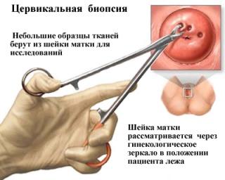 Цервикальная биопсия шейки матки.