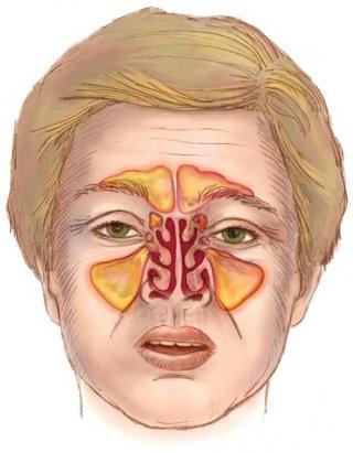 МРТ придаточных пазух носа – цены, норма, расшифровка, подготовка ...