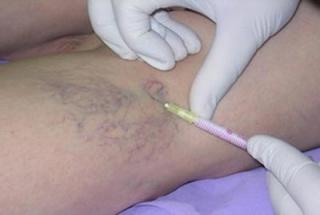 Варикозное расширение вен малого таза симптомы и лечение