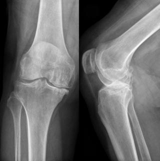Рентгенография коленного сустава.
