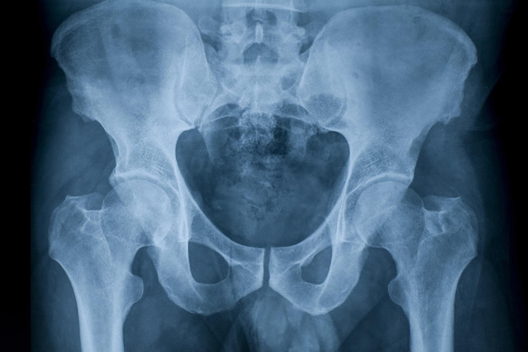 Рентгеновский снимок тазобедренных суставов.